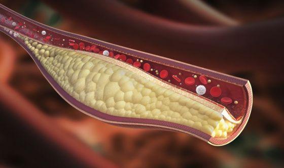 Alti livelli di colesterolo aumentano il rischio di tumori