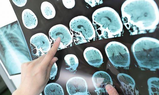 Scoprire l'Alzheimer nel linguaggio