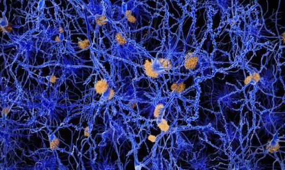 Alzheimer: la ricerca su diagnosi e nuove cure continua