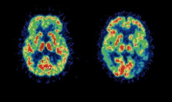 Alzheimer: le cure dolci migliorano la plasticità cerebrale
