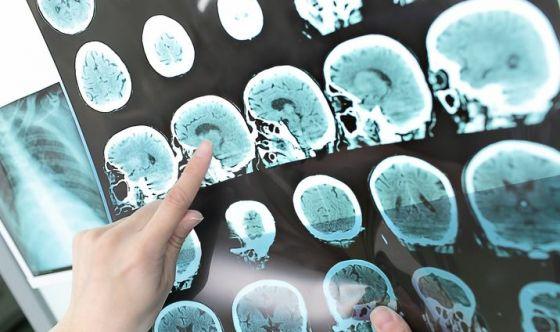 Trasmissibilità dell'Alzheimer: una prova sperimentale