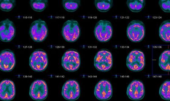 Alzheimer: studio italiano migliora la diagnosi precoce