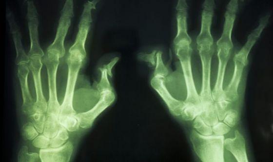Le alghe brune: una risorsa nell'artrite