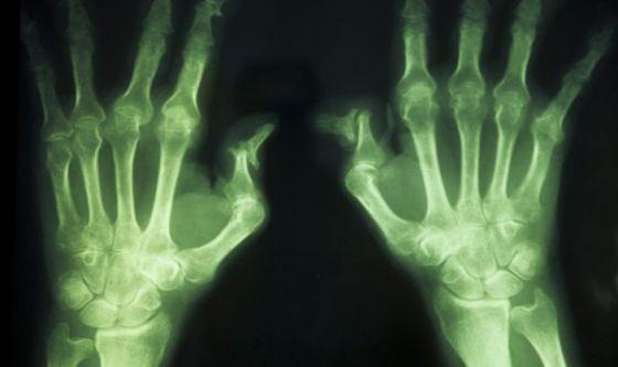 Artrite reumatoide: un nuovo farmaco a disposizione