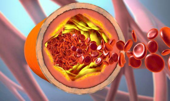 Nuove prospettive per trattare l'aterosclerosi