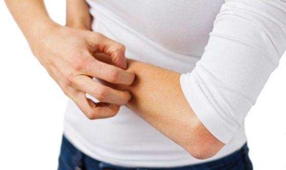 Dermatite atopica: quali rimedi omeopatici?