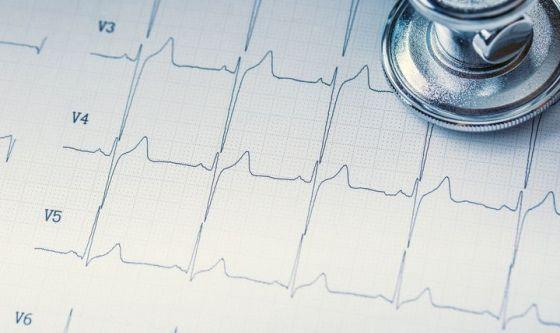 Fibrillazione atriale: quale impatto?