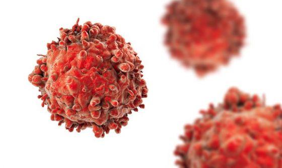 Leucemia mieloide acuta, azacitidina allunga sopravvivenza