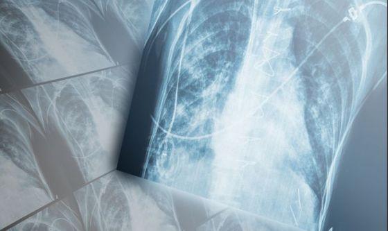 APPlichiamoci per respirare meglio
