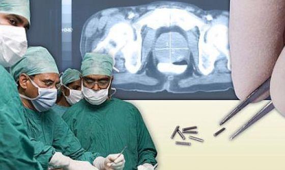 Brachiterapia contro il tumore della cervice uterina