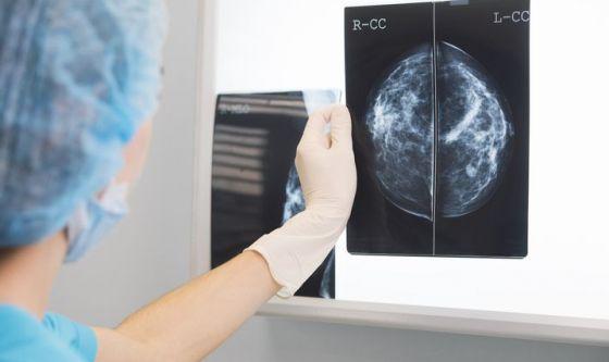 Tumore seno, oncologi chiedono Breast Unit in tutta Italia