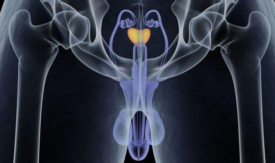 Nuovo farmaco per il cancro alla prostata non metastatico