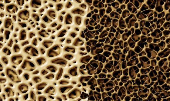 Dopo un cancro al seno rischio osteoporosi