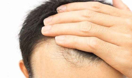 Cause della caduta dei capelli nell'uomo