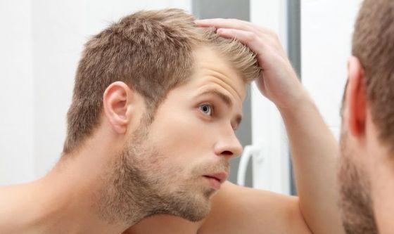 Caduta di capelli, rimedi a confronto
