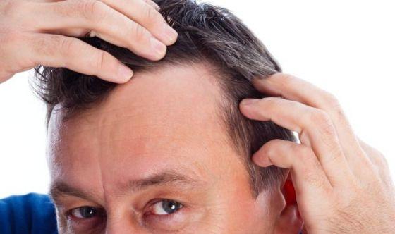 Cadono i capelli