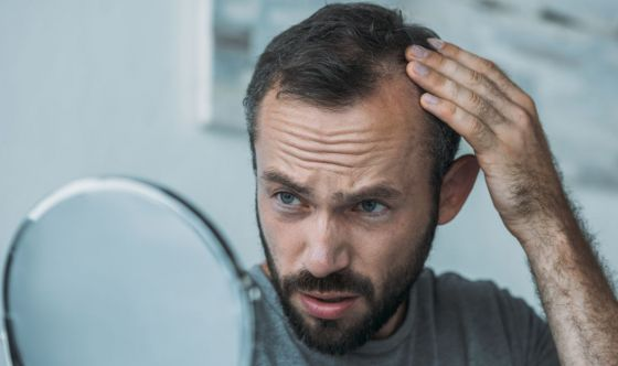 Integratore per capelli Bioscalin