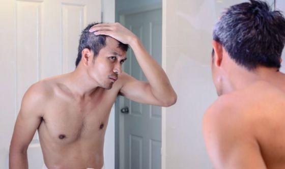 Contrastare calvizie e capelli bianchi? Perché no?
