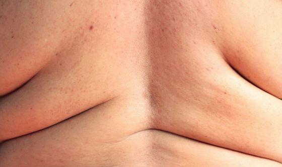 Cancro del colon: rischia di più chi è obeso