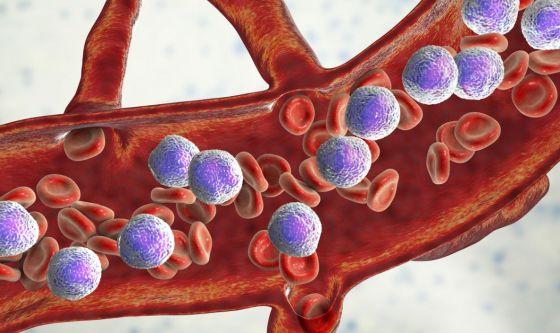 Leucemia, al San Raffaele nuova strategia per combatterla