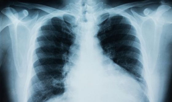 Nivolumab approvato per cancro del polmone a piccole cellule