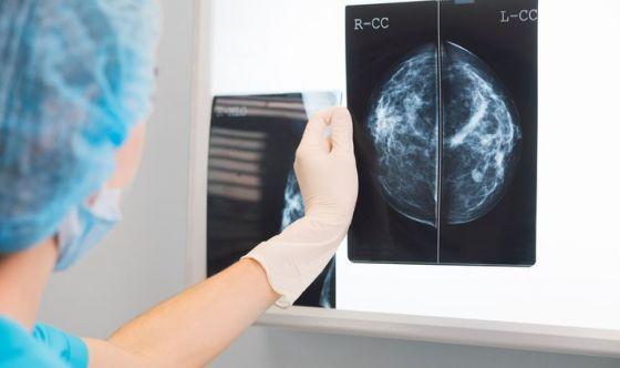 Scoperta una nuova arma contro il tumore al seno