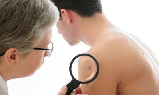 Un nuovo vaccino contro il melanoma