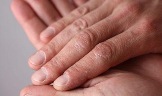 Un nuovo trattamento contro la sclerodermia