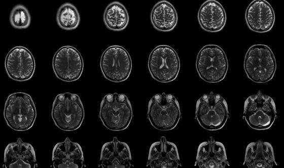 Negli anziani il cervello si rigenera come nei giovani