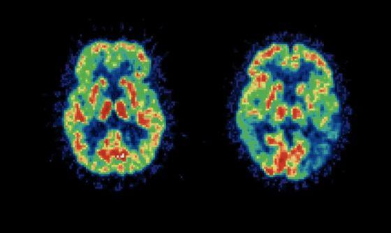 Il cervello umano si sviluppa anche in età adulta