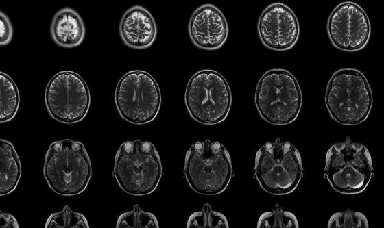 Tumori: ecco come si formano metastasi al cervello