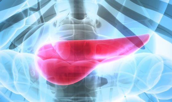 Tumore al pancreas: prima la chemio, poi l'intervento
