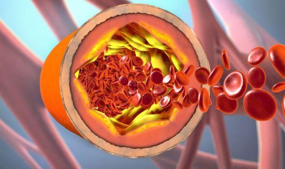 Prostata in pericolo con dieta grassa e colesterolo alto