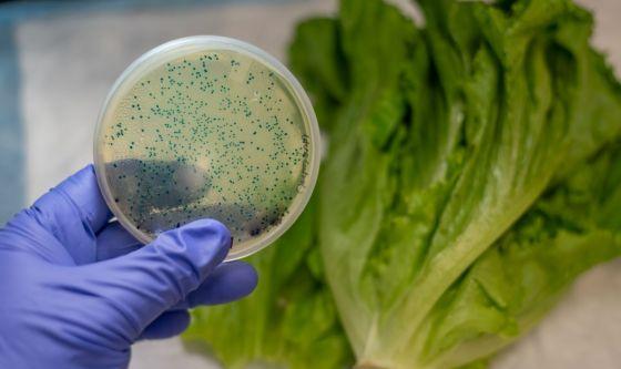 Un batterio molto comune: l'Escherichia coli