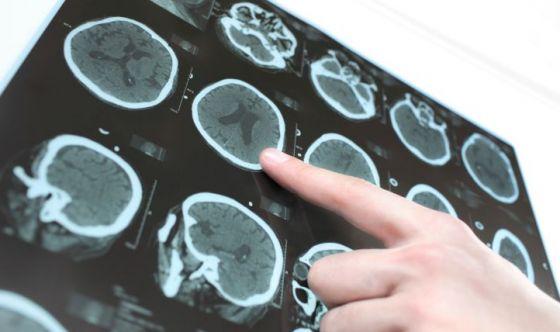 Declino delle performance cognitive e rischio ictus