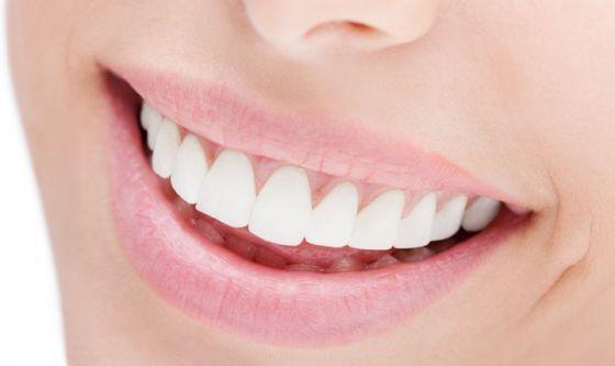 Sorriso smagliante: cosa c'è da sapere sui metodi sbiancanti