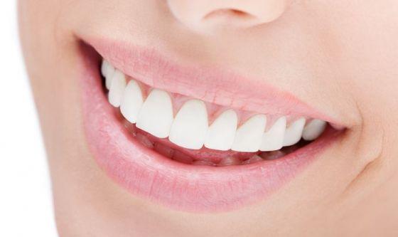 Il sorriso perfetto: denti bianchi e labbra morbide