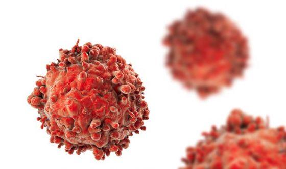 Leucemia: eventuali recidive sono prevedibili alla diagnosi
