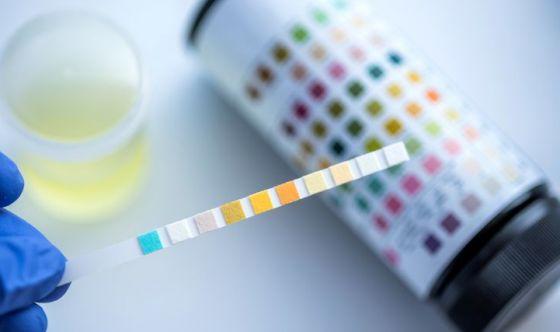 Un test delle urine ci dirà quanto è sana la nostra dieta