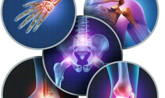 Dolori a ossa e muscoli: 6 italiani su 10 evitano i farmaci