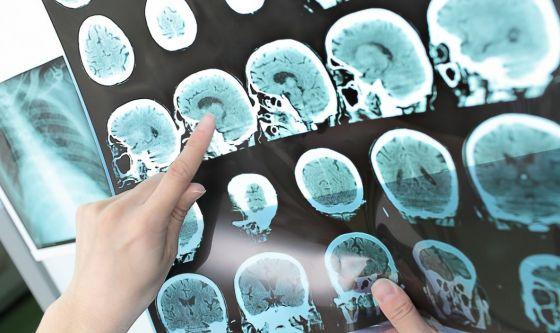 Sclerosi multipla: scoperte cause delle frequenti emicranie