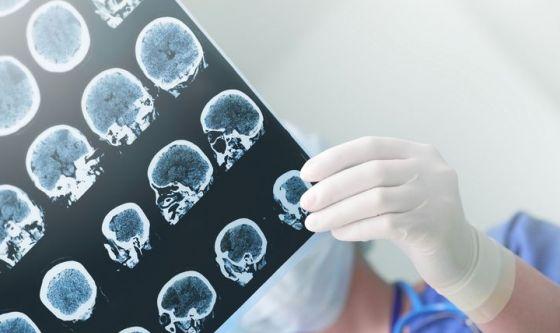 Nasce in Italia una nuova terapia contro l'epilessia