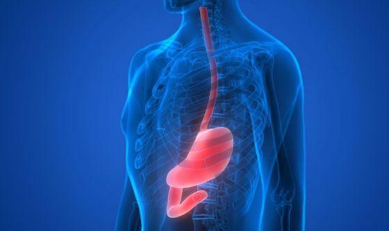Acalasia: reflusso gastroesofageo e rischio tumore esofago