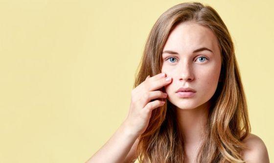 Acne e brufoli: l'estratto di bardana migliora la pelle