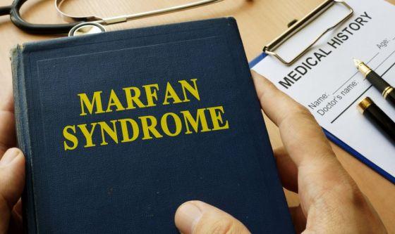Sindrome di Marfan per la figlia di Luca Ward