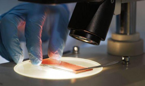 Leucemia mieloide acuta, importanza dell'inibizione di FLT3U
