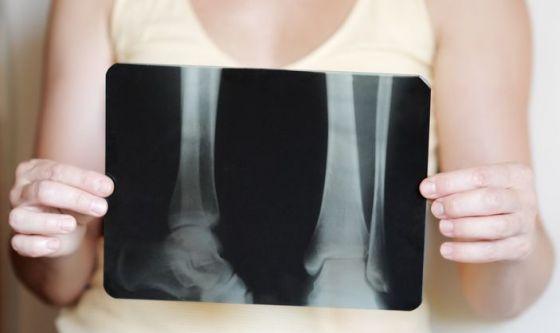 Osteoporosi: anche l'ambiente impatta sulla densità ossea