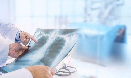 Preservare la funzionalità polmonare con le antocianine