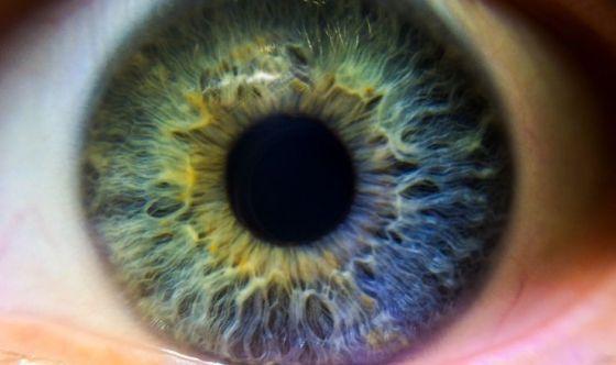 Glaucoma: un killer silenzioso della vista