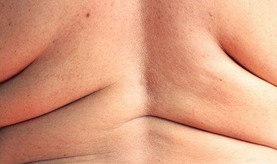 L'obesità riduce il volume della materia grigia nel cervello
